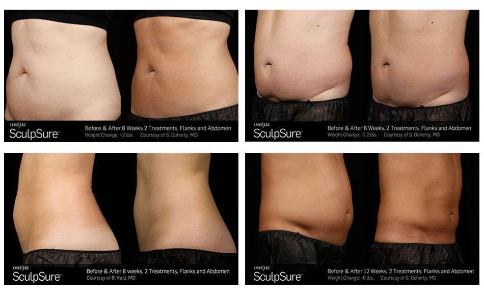 Eliminate Unwanted Fat Without Going Under the Knife