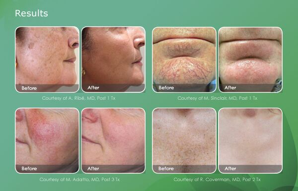 Max G Facial Veins and Rosacea | Boise, ID