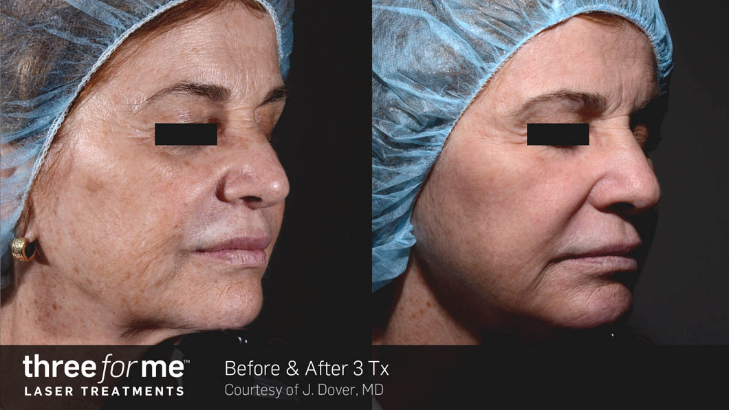 The threeforme treatment is performed in 2 steps.
